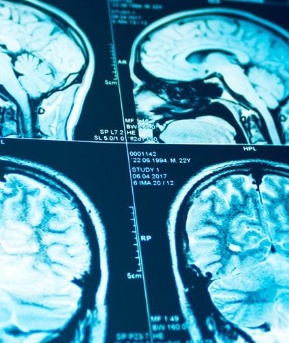 Neurocirugia 600x712